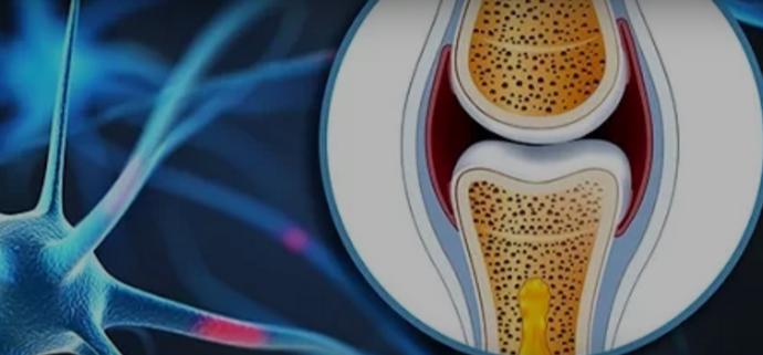 Лекува болни колена, обновува коски и зглобови – ова е решението