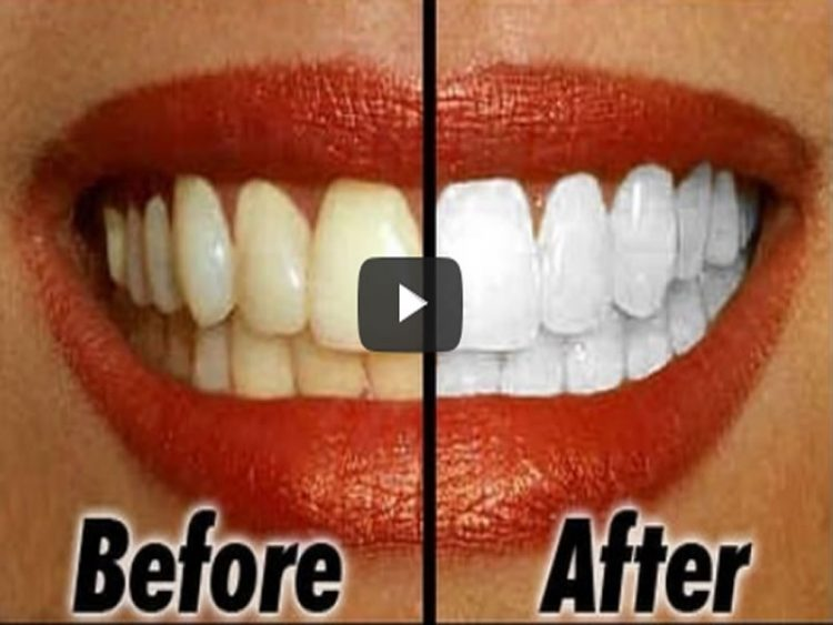 Намирници кои се ужасни за забите