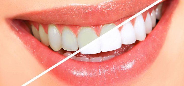Со овие две намирници забите ќе блескаат – избелете ги природно