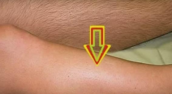 ДАМИ ОВА Е СПАСОТ: Решете се од влакната на телото со БРАШНО
