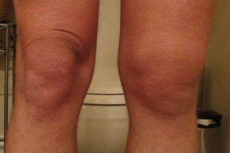 Ги шокираше и докторите- ова лекува болни колена, регенерира коски и зглобови веднаш