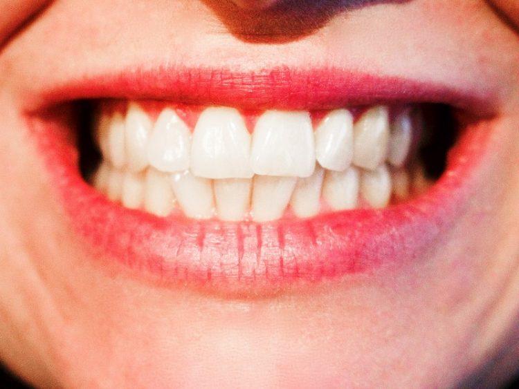 За блескаво бела насмевка и здрави заби – Ви треба една намирница од кујната